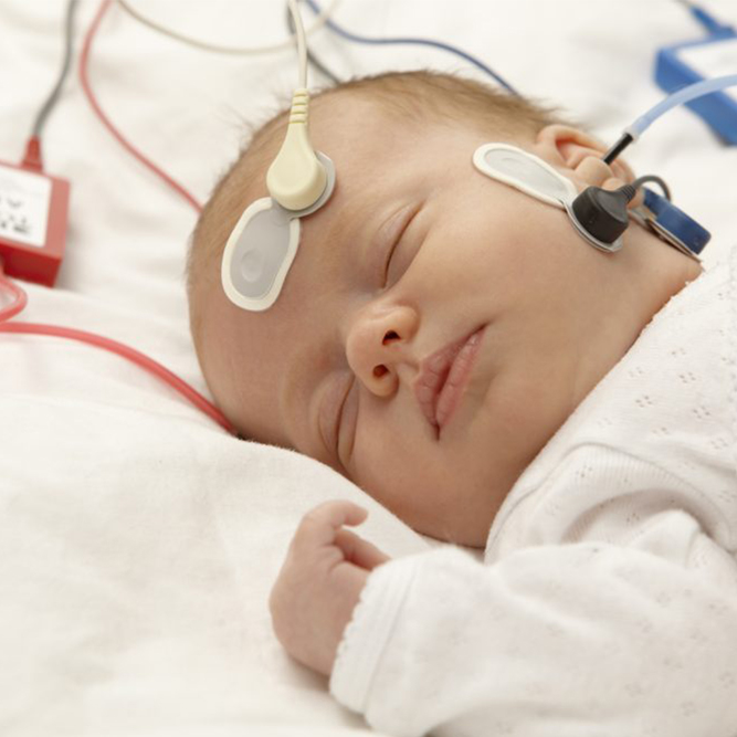 Hearing-Test-for-Children---ABR-ASSR