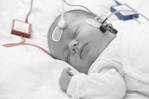 AABR newborn hearing screening