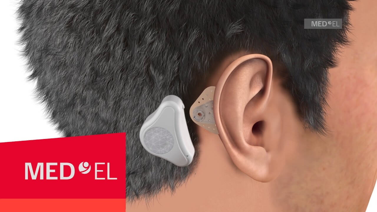 Blog-15-What Is Unilateral Hearing Loss aka Single Sided Deafness-3