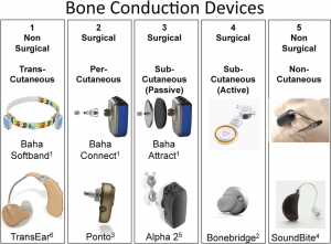 Prosthetic Bone Conduction Devices Current Bone Conduction Prosthetic Devices