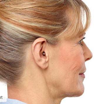 Ria2 Minirite Monaural Ear Side View
