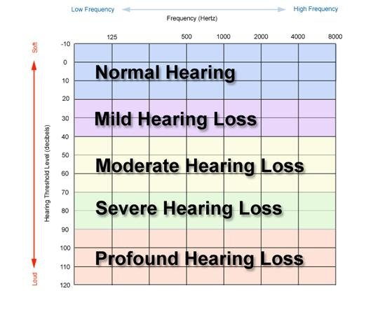How To Read An Audiogram 02