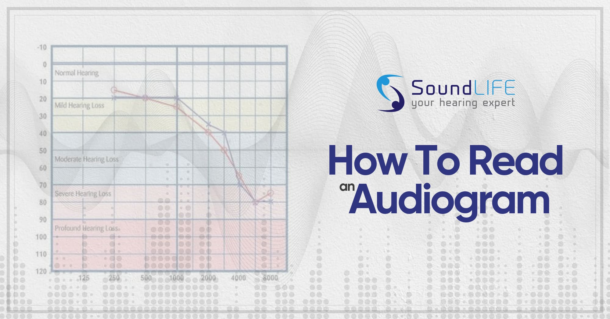 How To Read An Audiogram Open Graph
