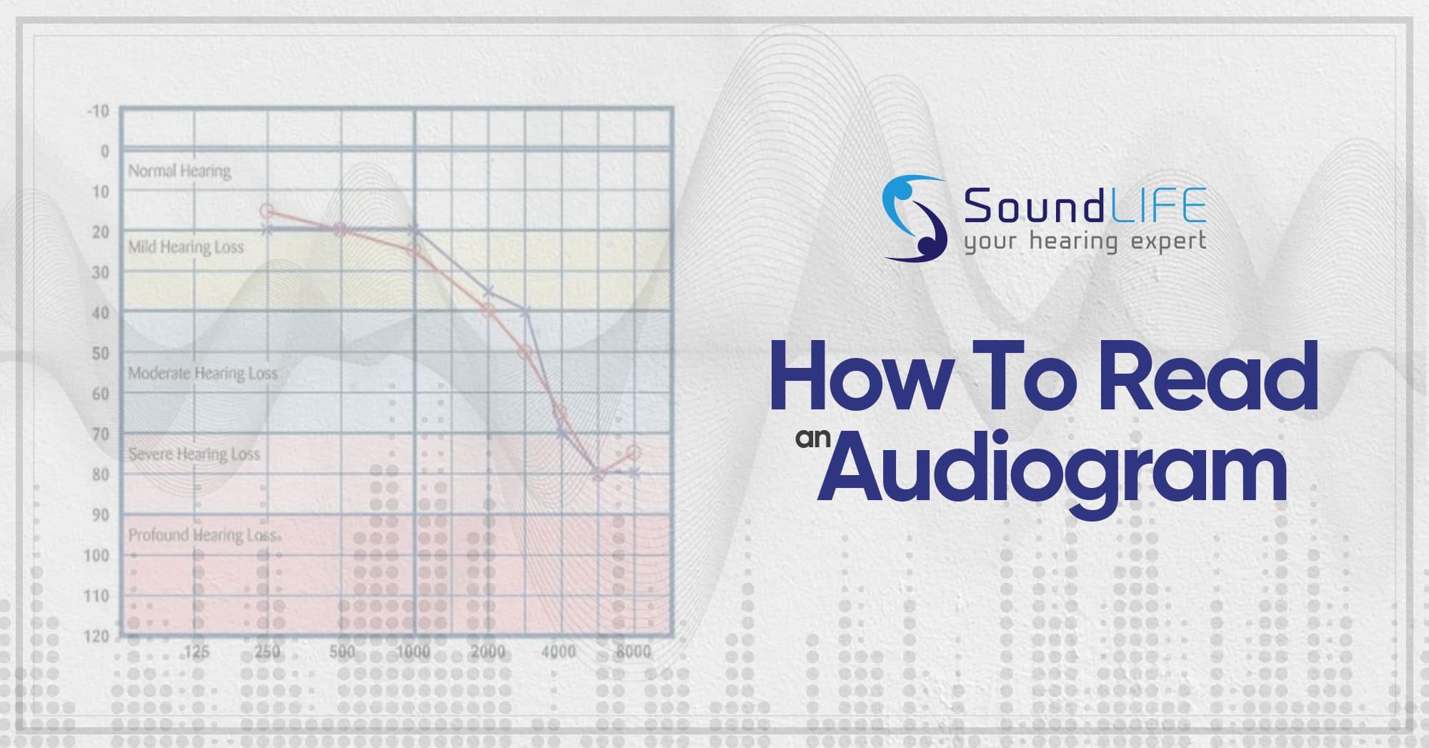 How To Read An Audiogram Open Graph